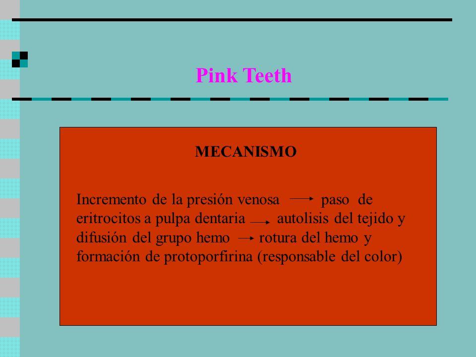 Pink Teeth MECANISMO Incremento de la presión venosa paso de eritrocitos a pulpa dentaria autolisis del tejido y difusión del grupo hemo rotura del he