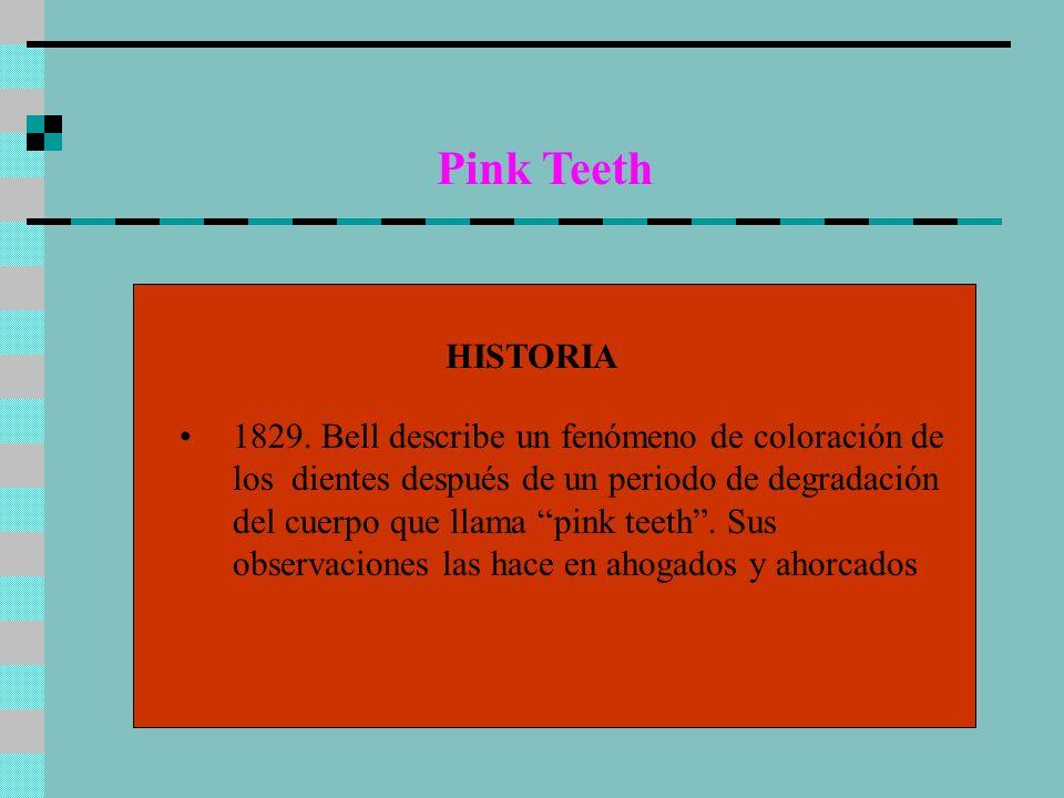 Pink Teeth CAUSAS Ahogados con la cabeza mas baja que el cuerpo Mas frecuente en jóvenes La coloración ocurre en dientes con dentina menos compacta y con mas túbulos dentinales.