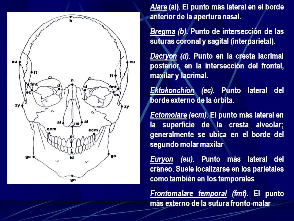 Alare (al). El punto más lateral en el borde anterior de la apertura nasal. Bregma (b). Punto de intersección de las suturas coronal y sagital (interp