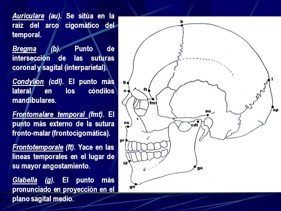 Auriculare (au). Se sitúa en la raíz del arco cigomático del temporal. Bregma (b). Punto de intersección de las suturas coronal y sagital (interpariet
