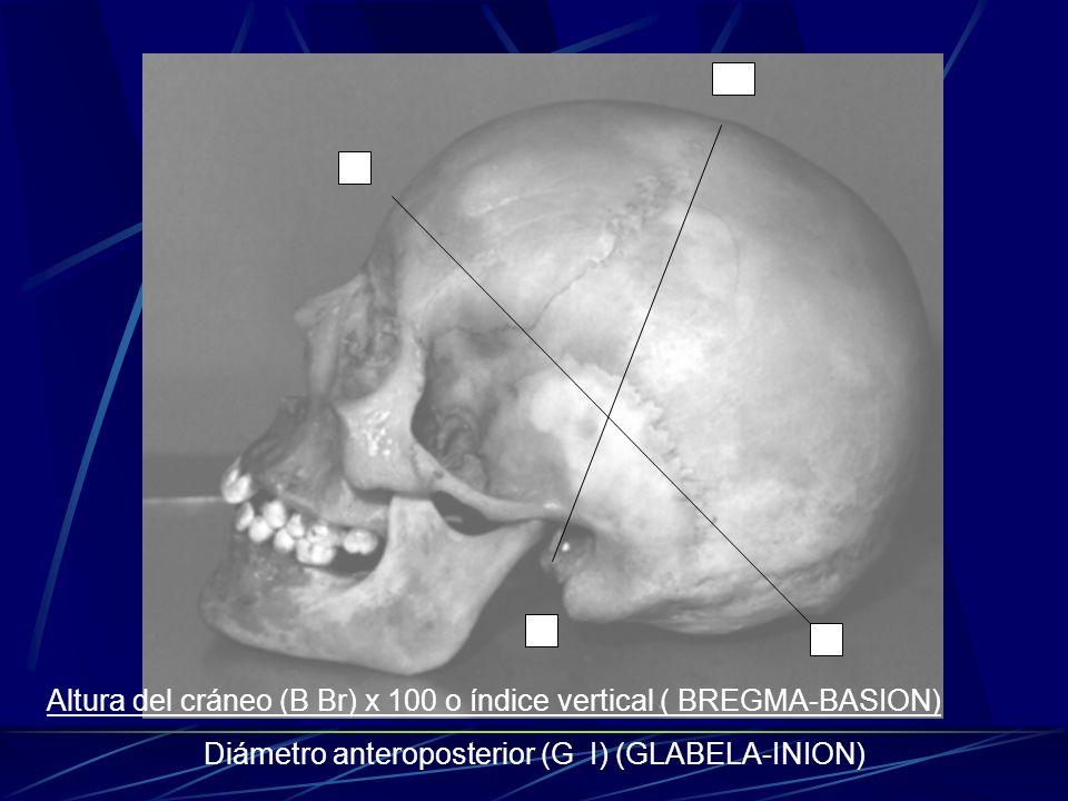 G I B Br Altura del cráneo (B Br) x 100 o índice vertical ( BREGMA-BASION) Diámetro anteroposterior (G I) (GLABELA-INION)