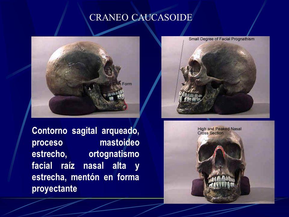 CRANEO CAUCASOIDE Contorno sagital arqueado, proceso mastoideo estrecho, ortognatismo facial raíz nasal alta y estrecha, mentón en forma proyectante