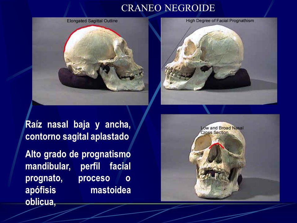 CRANEO NEGROIDE Raíz nasal baja y ancha, contorno sagital aplastado Alto grado de prognatismo mandibular, perfil facial prognato, proceso o apófisis m