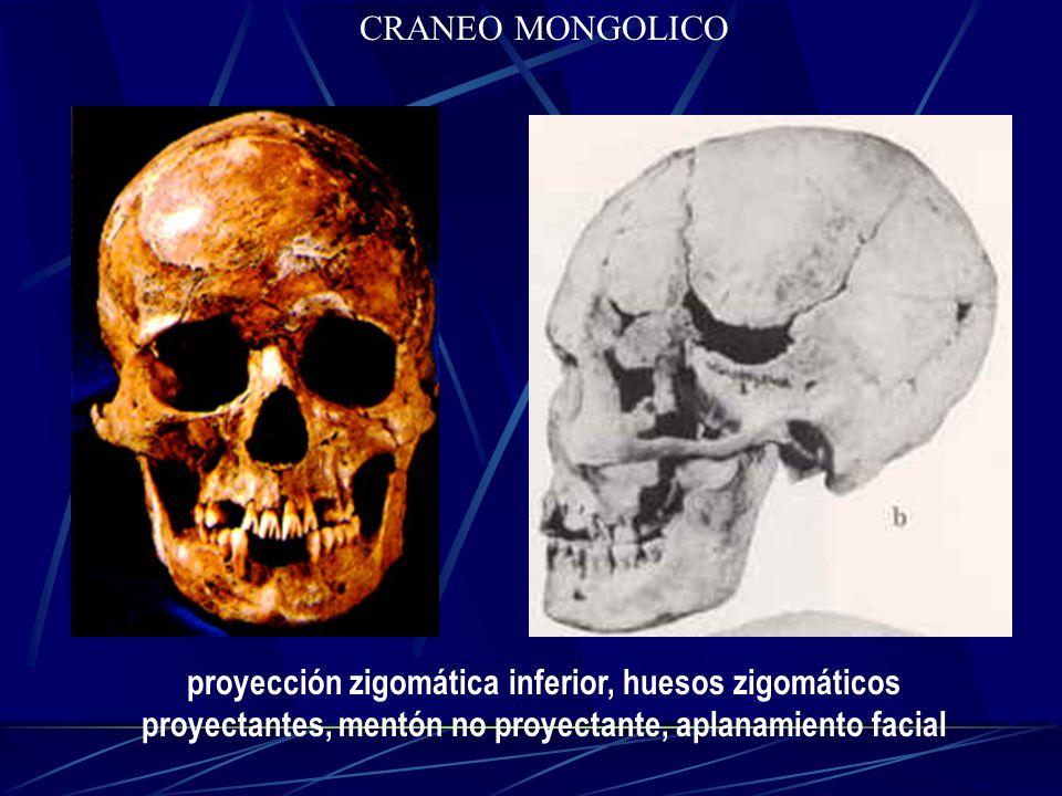 proyección zigomática inferior, huesos zigomáticos proyectantes, mentón no proyectante, aplanamiento facial CRANEO MONGOLICO