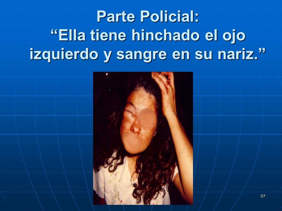 27 Parte Policial: Ella tiene hinchado el ojo izquierdo y sangre en su nariz.