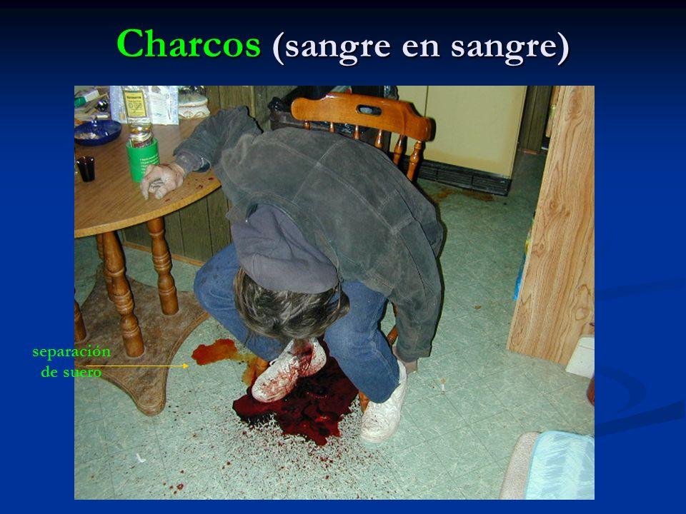 Charcos (sangre en sangre) separación de suero