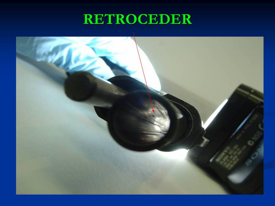 RETROCEDER
