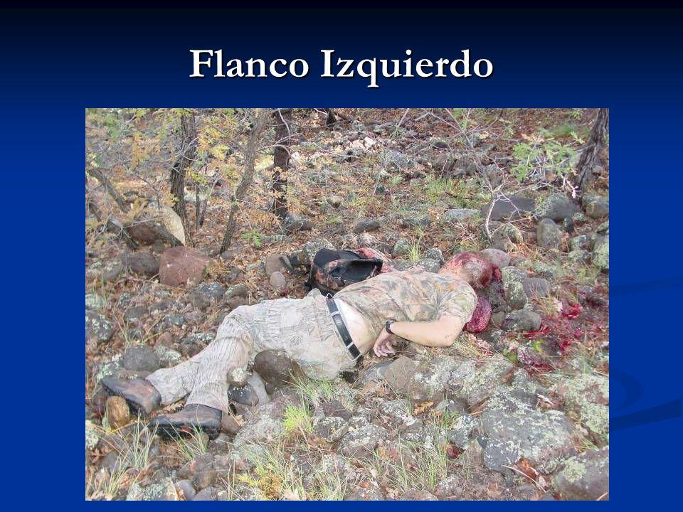Flanco Izquierdo