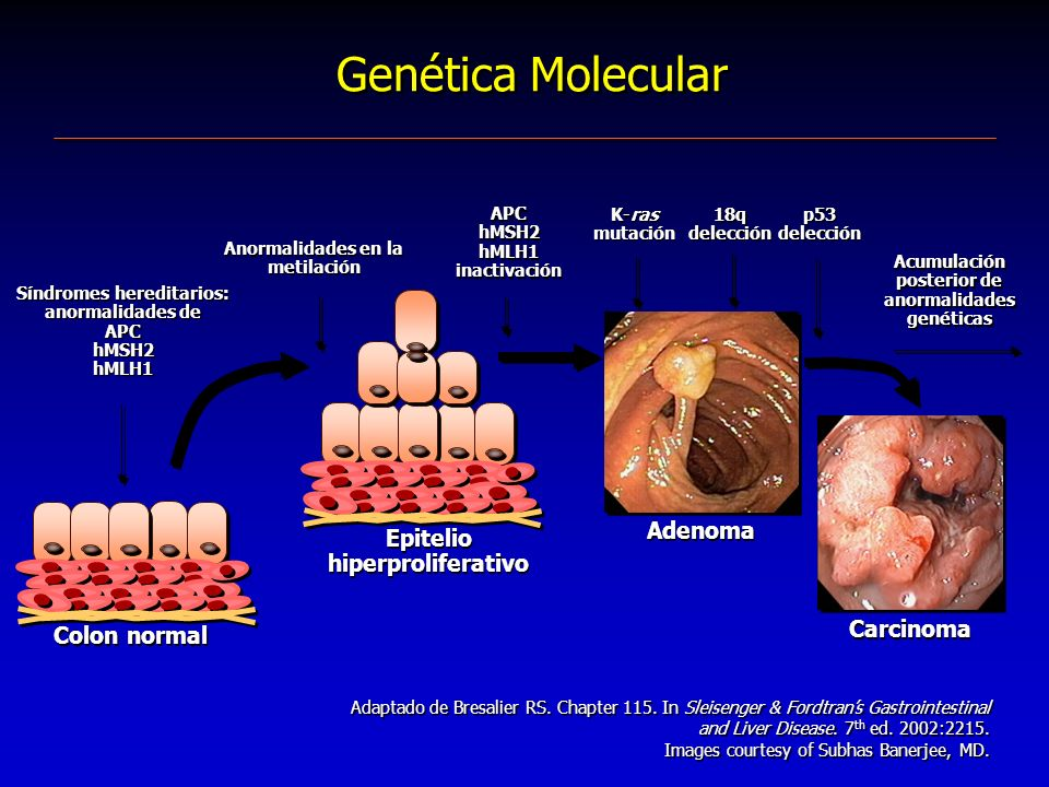 Epitelio hiperproliferativo Genética Molecular Adenoma Colon normal Carcinoma Adaptado de Bresalier RS. Chapter 115. In Sleisenger & Fordtrans Gastroi