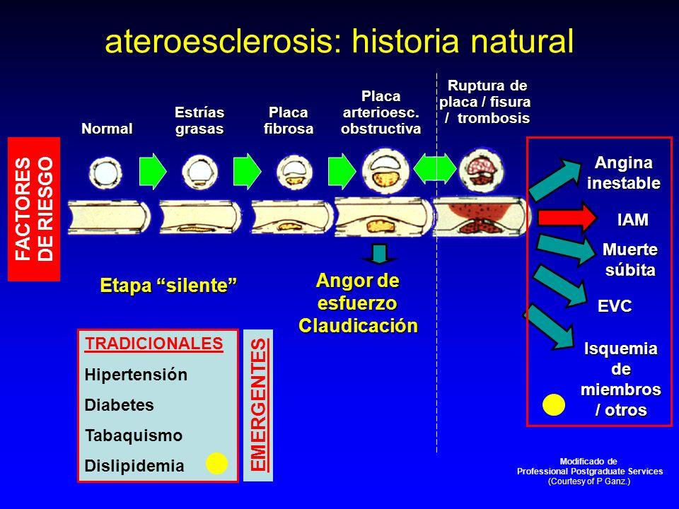 Normal Estríasgrasas Placa fibrosa Placa arterioesc. obstructiva Ruptura de placa / fisura / trombosis IAM EVC Isquemia de miembros / otros Etapa sile