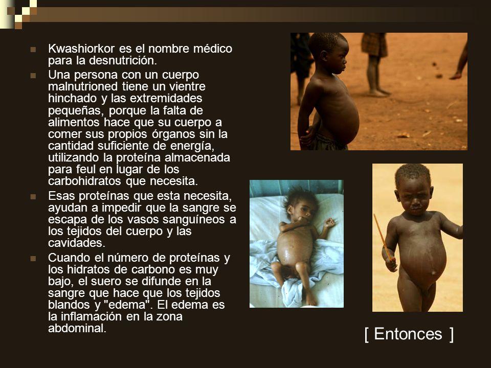 [ Entonces ] Kwashiorkor es el nombre médico para la desnutrición. Una persona con un cuerpo malnutrioned tiene un vientre hinchado y las extremidades