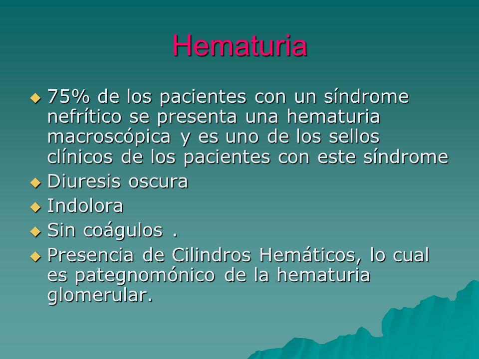 Hematuria 75% de los pacientes con un síndrome nefrítico se presenta una hematuria macroscópica y es uno de los sellos clínicos de los pacientes con e
