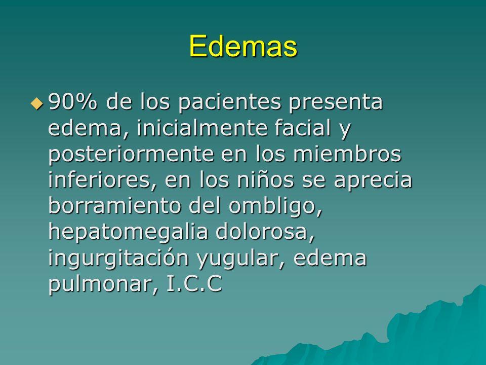 Edemas 90% de los pacientes presenta edema, inicialmente facial y posteriormente en los miembros inferiores, en los niños se aprecia borramiento del o