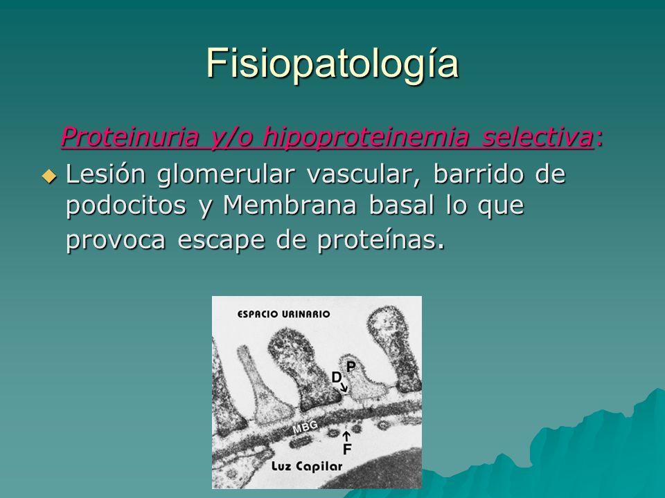 Fisiopatología Proteinuria y/o hipoproteinemia selectiva: Lesión glomerular vascular, barrido de podocitos y Membrana basal lo que provoca escape de p