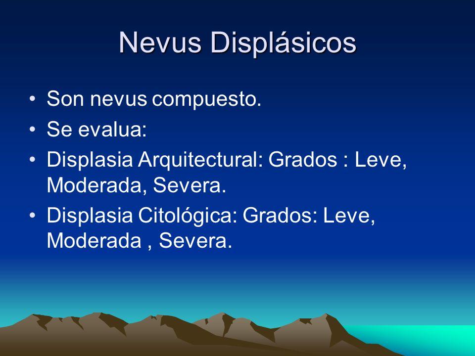 Nevus Displásicos Son nevus compuesto. Se evalua: Displasia Arquitectural: Grados : Leve, Moderada, Severa. Displasia Citológica: Grados: Leve, Modera