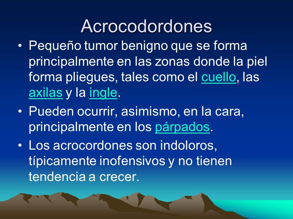 Acrocodordones Pequeño tumor benigno que se forma principalmente en las zonas donde la piel forma pliegues, tales como el cuello, las axilas y la ingl