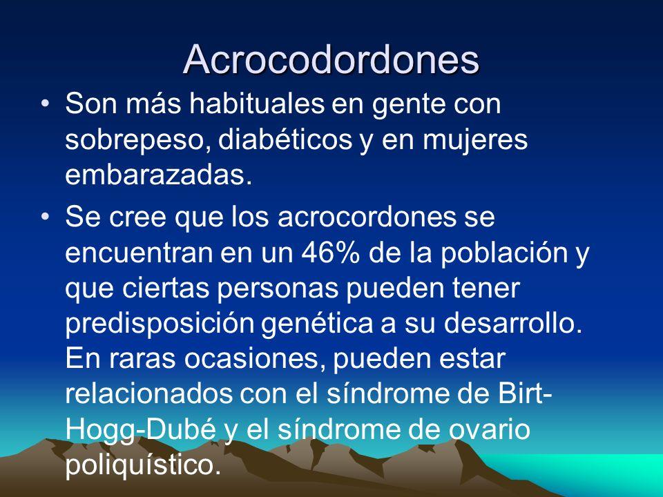 Acrocodordones Son más habituales en gente con sobrepeso, diabéticos y en mujeres embarazadas. Se cree que los acrocordones se encuentran en un 46% de