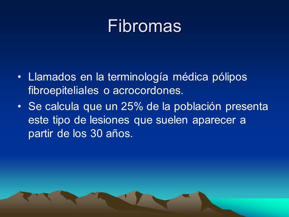 Fibromas Llamados en la terminología médica pólipos fibroepiteliales o acrocordones. Se calcula que un 25% de la población presenta este tipo de lesio