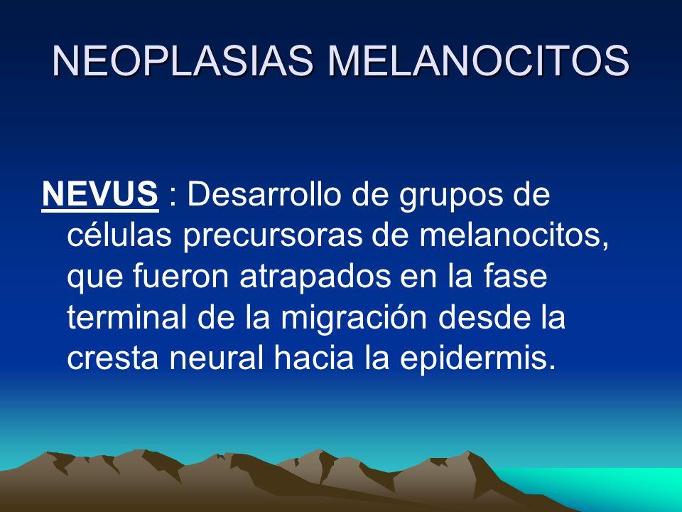 NEOPLASIAS MELANOCITOS NEVUS : Desarrollo de grupos de células precursoras de melanocitos, que fueron atrapados en la fase terminal de la migración de