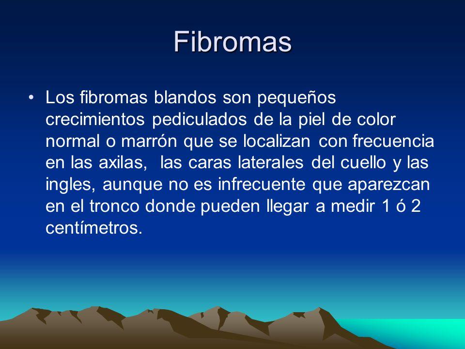 Fibromas Los fibromas blandos son pequeños crecimientos pediculados de la piel de color normal o marrón que se localizan con frecuencia en las axilas,