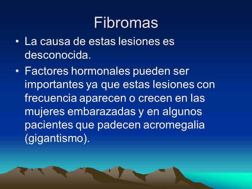 Fibromas La causa de estas lesiones es desconocida. Factores hormonales pueden ser importantes ya que estas lesiones con frecuencia aparecen o crecen