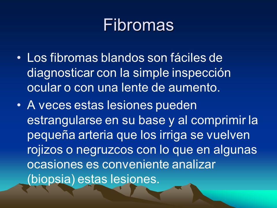 Fibromas Los fibromas blandos son fáciles de diagnosticar con la simple inspección ocular o con una lente de aumento. A veces estas lesiones pueden es