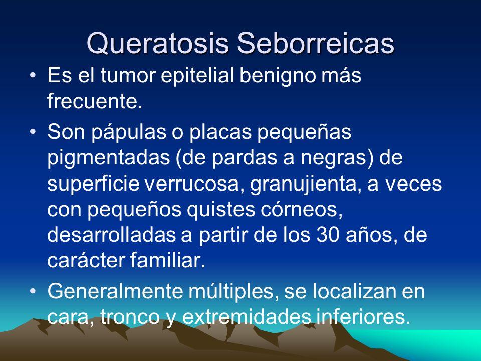 Queratosis Seborreicas Es el tumor epitelial benigno más frecuente. Son pápulas o placas pequeñas pigmentadas (de pardas a negras) de superficie verru