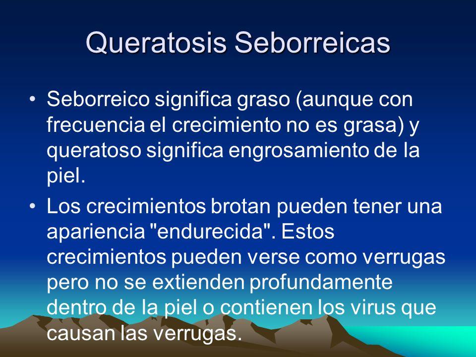 Queratosis Seborreicas Seborreico significa graso (aunque con frecuencia el crecimiento no es grasa) y queratoso significa engrosamiento de la piel. L