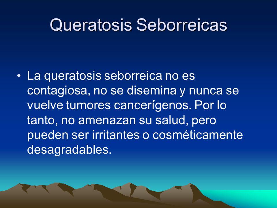 Queratosis Seborreicas La queratosis seborreica no es contagiosa, no se disemina y nunca se vuelve tumores cancerígenos. Por lo tanto, no amenazan su