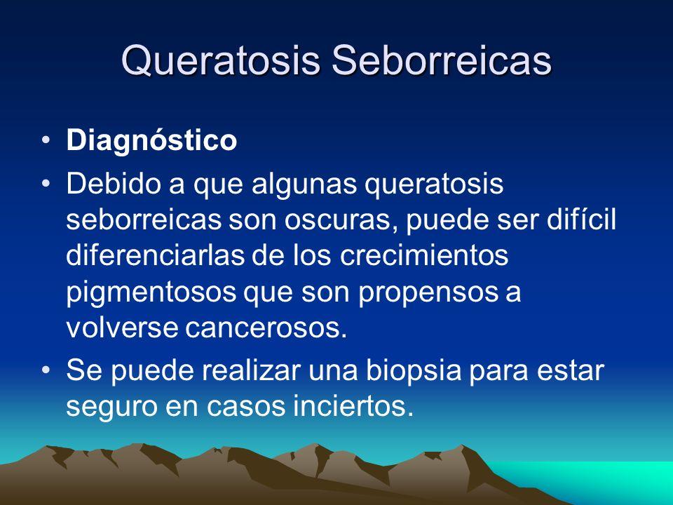 Queratosis Seborreicas Diagnóstico Debido a que algunas queratosis seborreicas son oscuras, puede ser difícil diferenciarlas de los crecimientos pigme