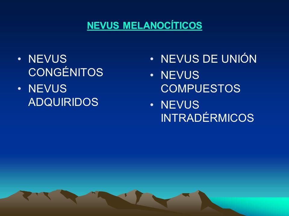 NEVUS MELANOCÍTICOS NEVUS CONGÉNITOS NEVUS ADQUIRIDOS NEVUS DE UNIÓN NEVUS COMPUESTOS NEVUS INTRADÉRMICOS
