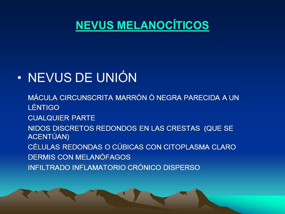 NEVUS MELANOCÍTICOS NEVUS DE UNIÓN MÁCULA CIRCUNSCRITA MARRÓN Ó NEGRA PARECIDA A UN LÉNTIGO CUALQUIER PARTE NIDOS DISCRETOS REDONDOS EN LAS CRESTAS (Q