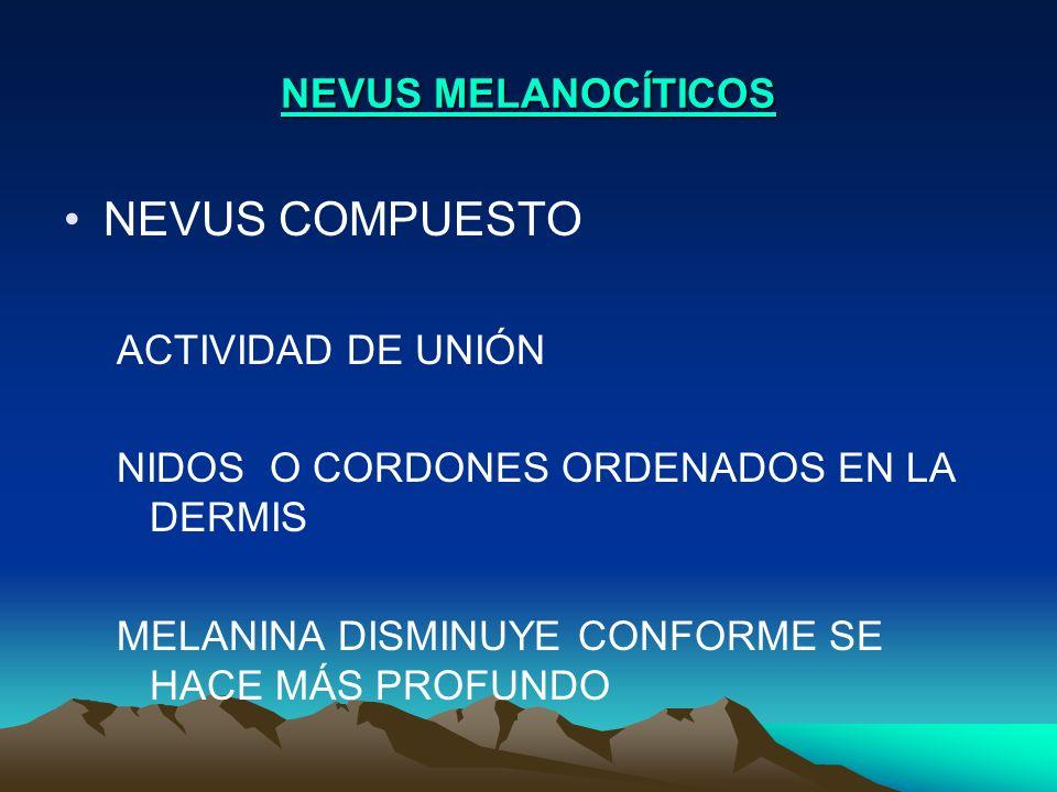 NEVUS MELANOCÍTICOS NEVUS COMPUESTO ACTIVIDAD DE UNIÓN NIDOS O CORDONES ORDENADOS EN LA DERMIS MELANINA DISMINUYE CONFORME SE HACE MÁS PROFUNDO