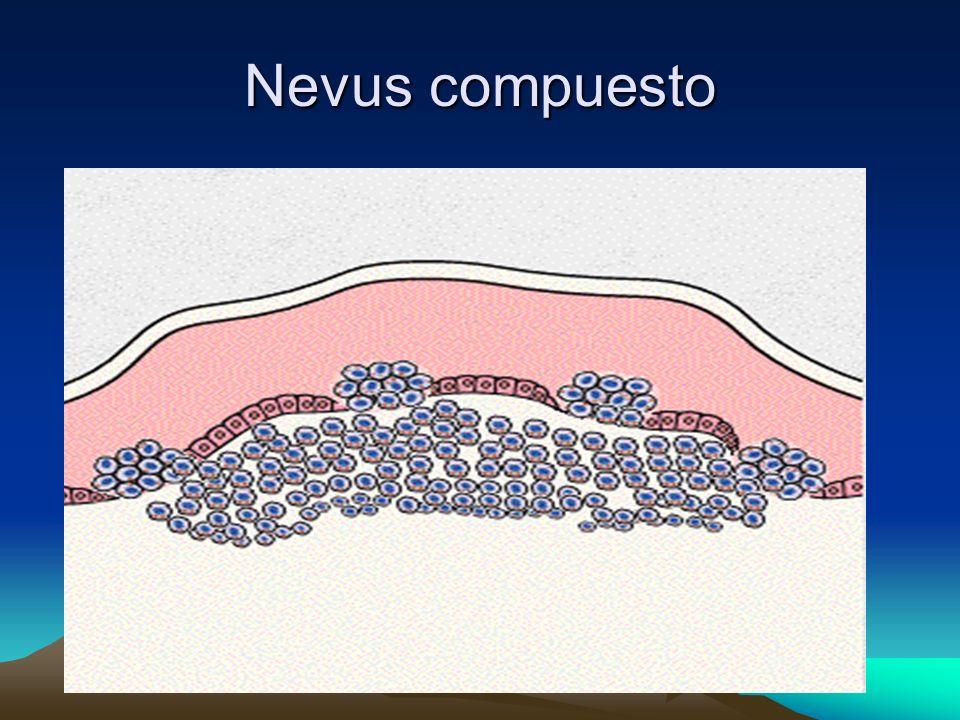 Queratosis Seborreicas Tratamiento Criocirugía: extirpación por congelamiento.