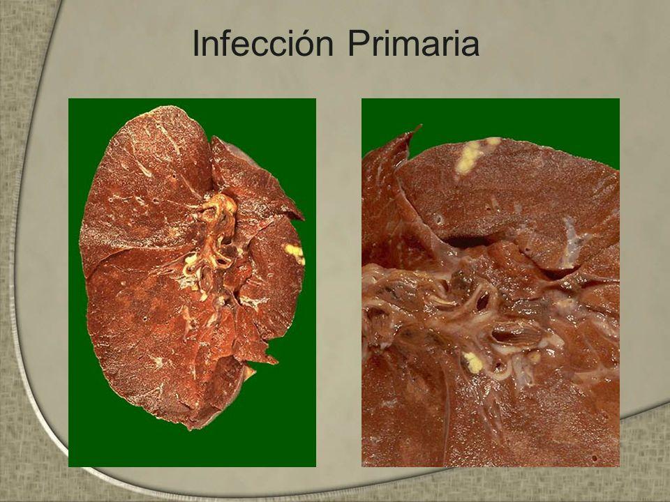 Infección Primaria
