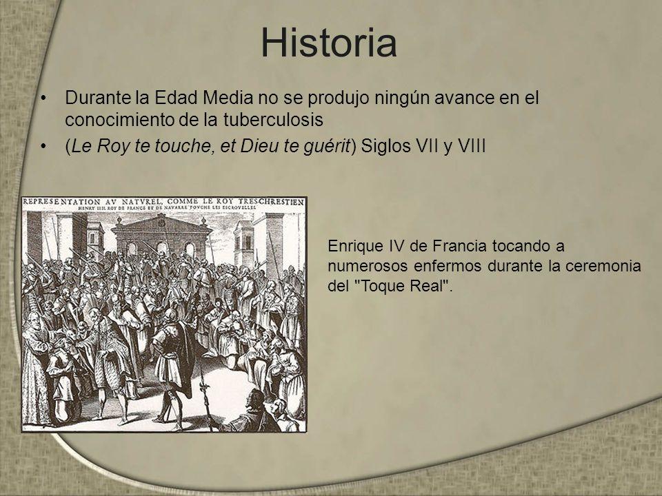 Historia Durante la Edad Media no se produjo ningún avance en el conocimiento de la tuberculosis (Le Roy te touche, et Dieu te guérit) Siglos VII y VI