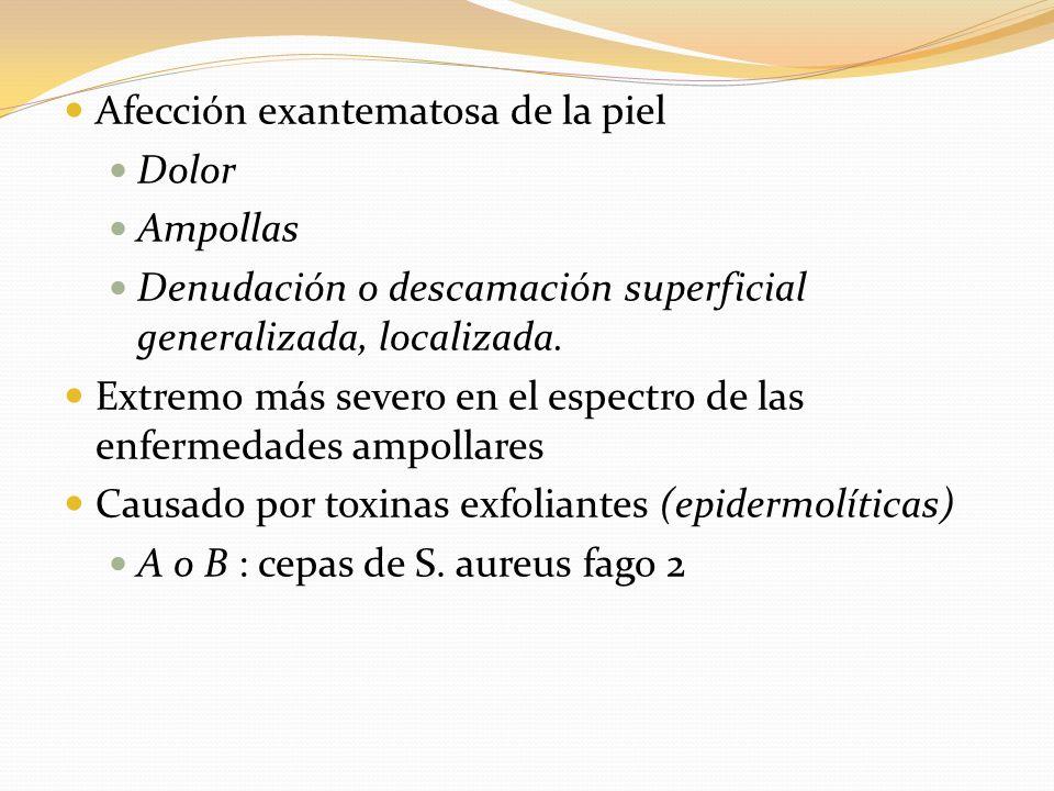 Afección exantematosa de la piel Dolor Ampollas Denudación o descamación superficial generalizada, localizada. Extremo más severo en el espectro de la
