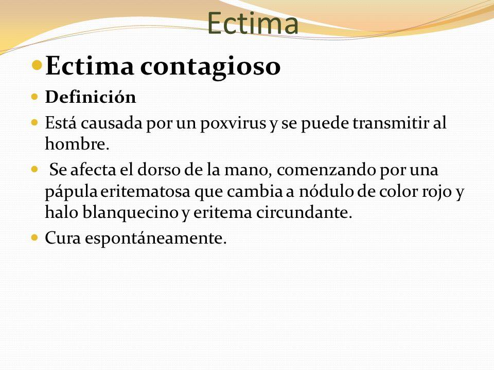 Ectima Ectima contagioso Definición Está causada por un poxvirus y se puede transmitir al hombre. Se afecta el dorso de la mano, comenzando por una pá