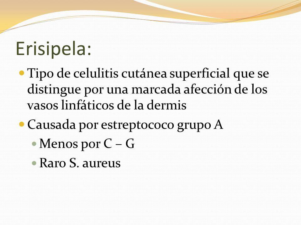 Erisipela: Tipo de celulitis cutánea superficial que se distingue por una marcada afección de los vasos linfáticos de la dermis Causada por estreptoco