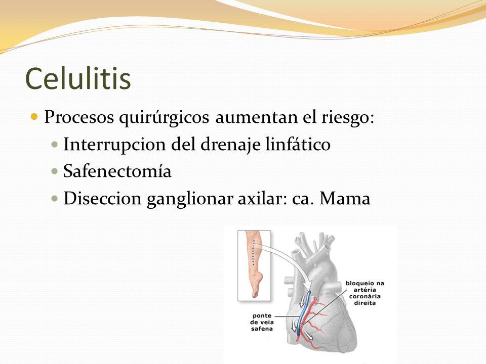 Celulitis Procesos quirúrgicos aumentan el riesgo: Interrupcion del drenaje linfático Safenectomía Diseccion ganglionar axilar: ca. Mama