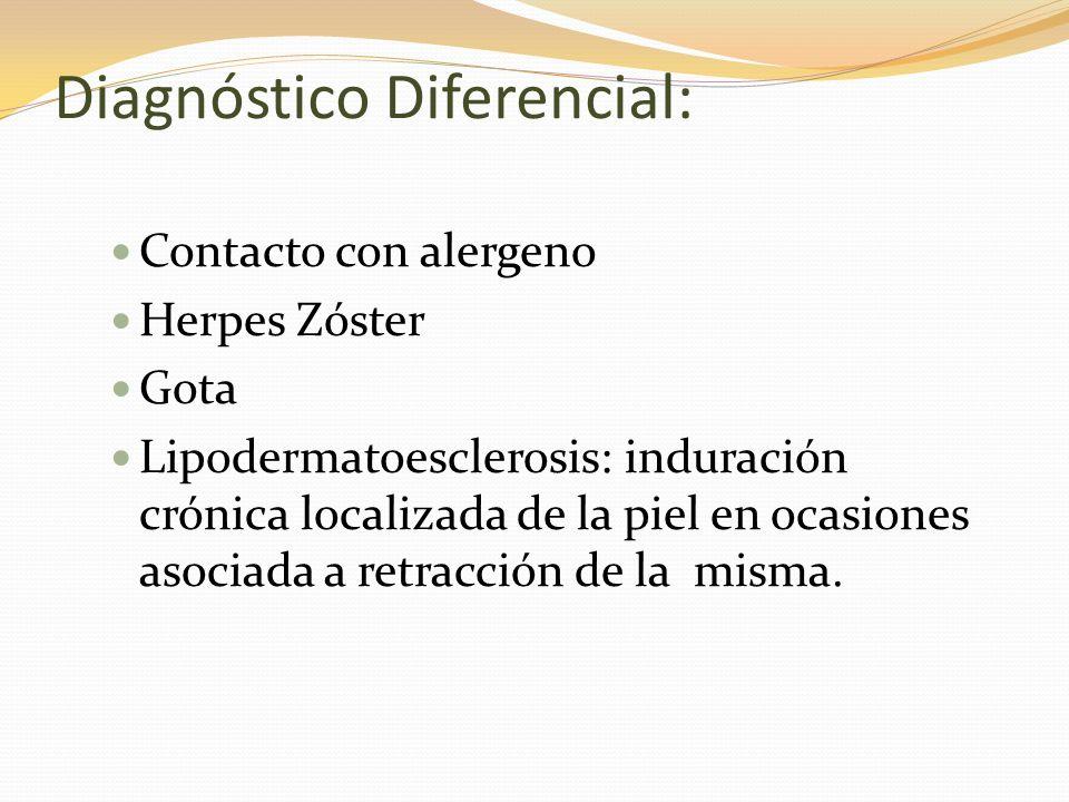 Diagnóstico Diferencial: Contacto con alergeno Herpes Zóster Gota Lipodermatoesclerosis: induración crónica localizada de la piel en ocasiones asociad