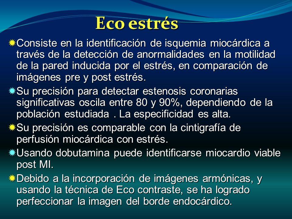 Consiste en la identificación de isquemia miocárdica a través de la detección de anormalidades en la motilidad de la pared inducida por el estrés, en