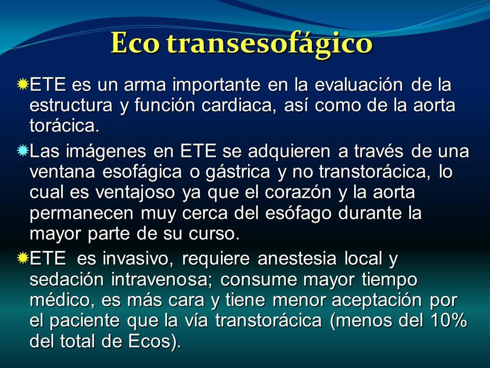 ETE es un arma importante en la evaluación de la estructura y función cardiaca, así como de la aorta torácica. ETE es un arma importante en la evaluac