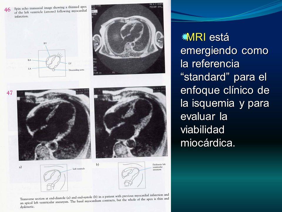MRI está emergiendo como la referencia standard para el enfoque clínico de la isquemia y para evaluar la viabilidad miocárdica. MRI está emergiendo co