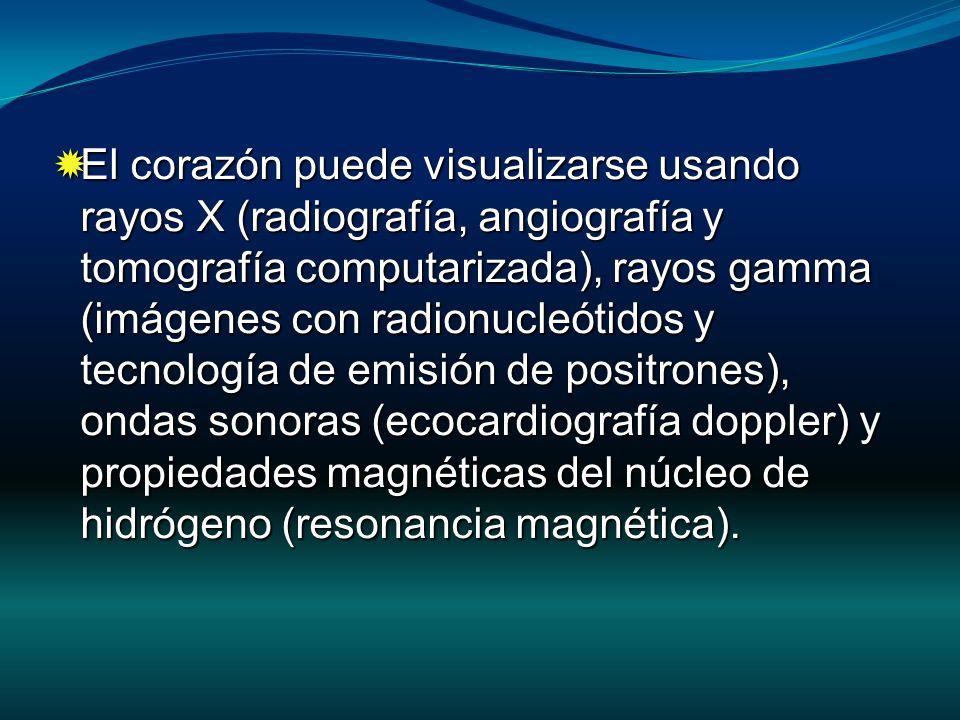 Las imágenes nucleares pueden ser adquiridas en reposo o durante estrés (ejercicio o farmacológico).