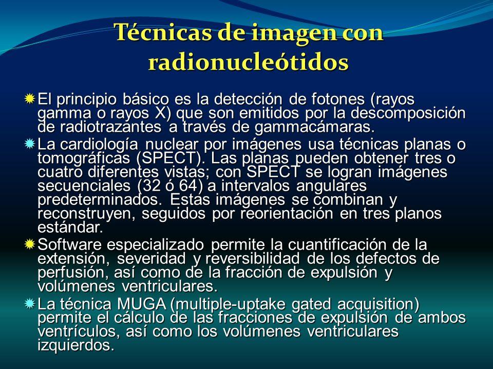 Técnicas de imagen con radionucleótidos El principio básico es la detección de fotones (rayos gamma o rayos X) que son emitidos por la descomposición