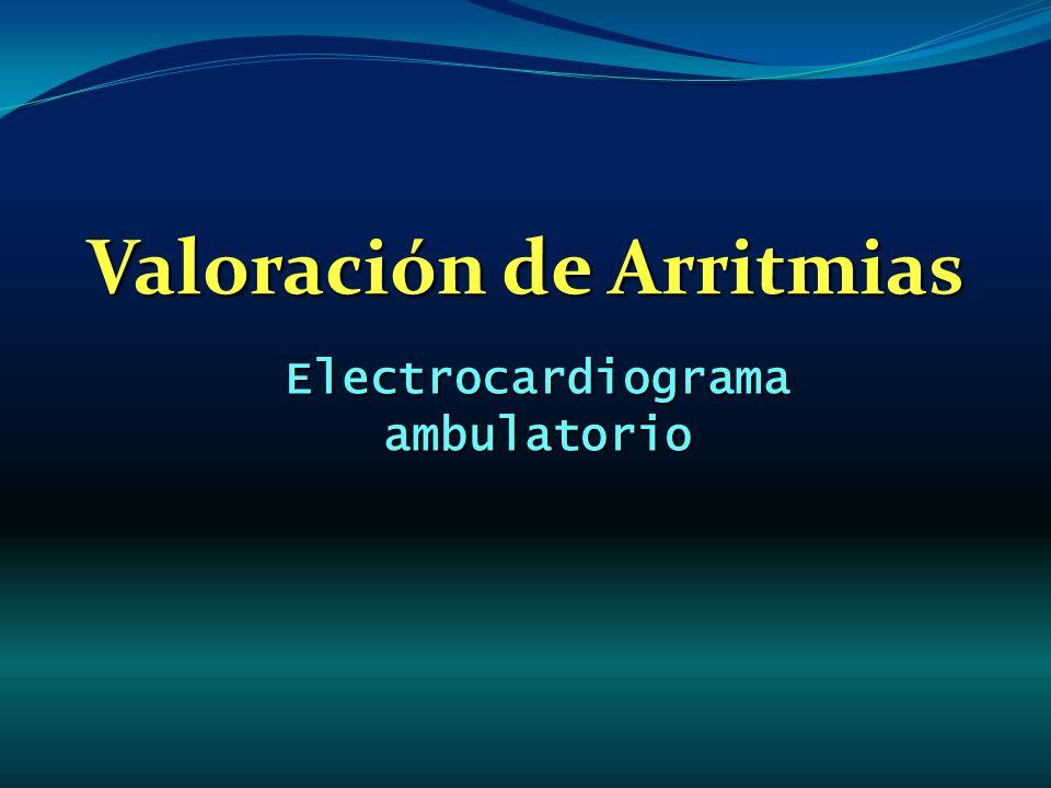 Valoración de Arritmias Electrocardiograma ambulatorio