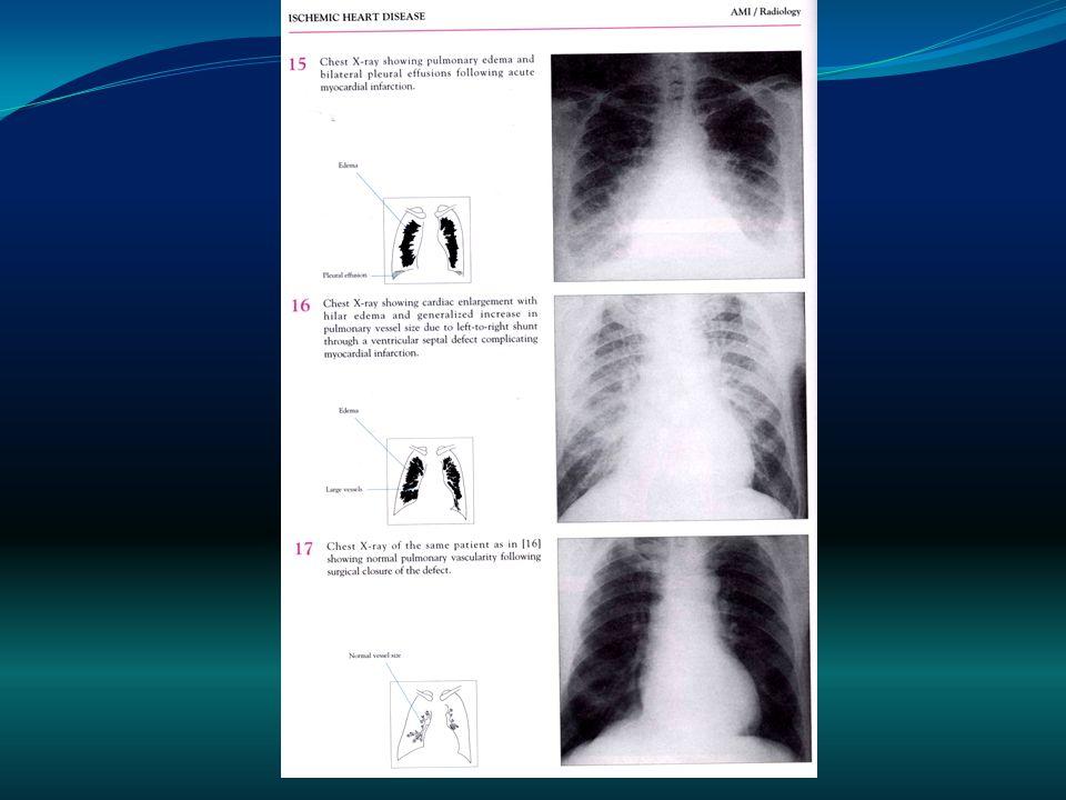 Resonancia magnética Técnica de alta resolución para la evaluación morfológica y fisiológica de una amplia gama de procesos congénitos y adquiridos que afectan corazón, pericardio, y grandes arterias y venas del tórax.
