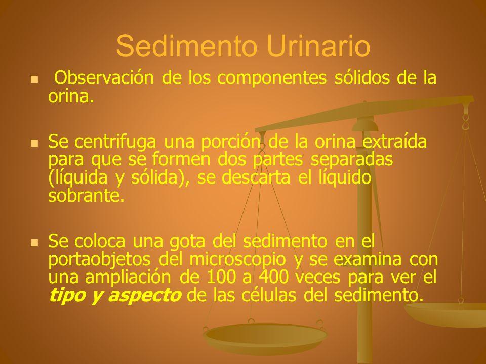 Sedimento Urinario Observación de los componentes sólidos de la orina. Se centrifuga una porción de la orina extraída para que se formen dos partes se