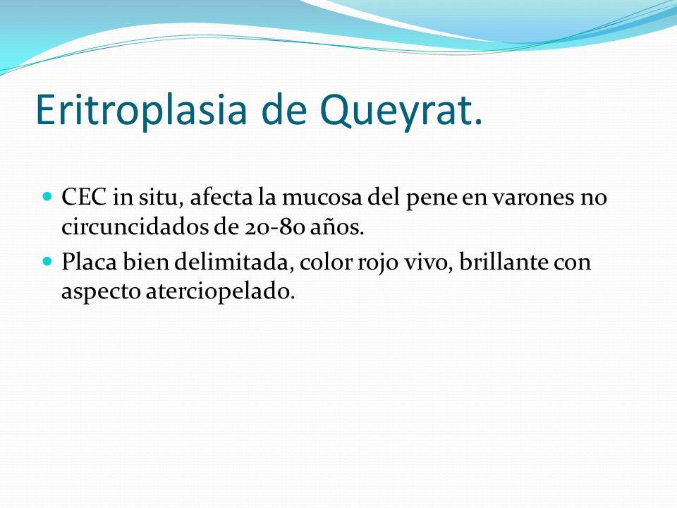 Eritroplasia de Queyrat. CEC in situ, afecta la mucosa del pene en varones no circuncidados de 20-80 años. Placa bien delimitada, color rojo vivo, bri